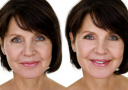 botox-before-after-small
